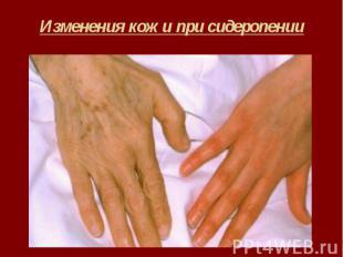Изменения кожи при сидеропении