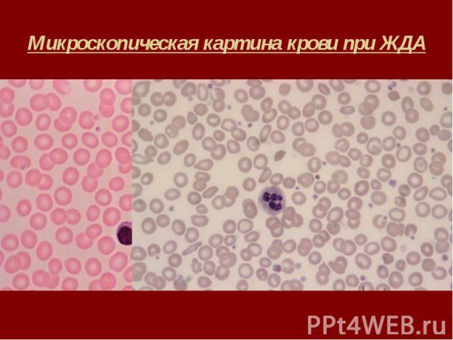 Микроскопическая картина крови при ЖДА
