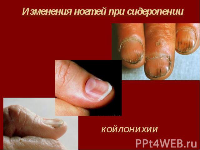 Изменения ногтей при сидеропении