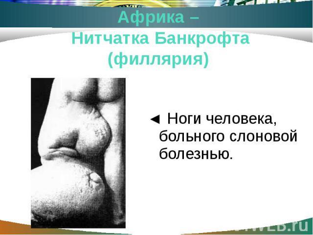 ◄ Ноги человека, больного слоновой болезнью.