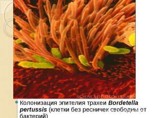 Колонизация эпителия трахеи Bordetella pertussis (клетки без ресничек свободны о