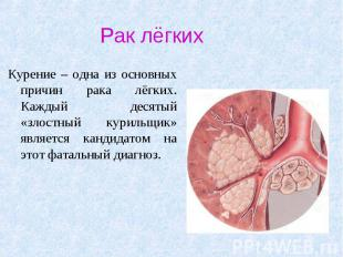 Рак лёгких Курение – одна из основных причин рака лёгких. Каждый десятый «злостн