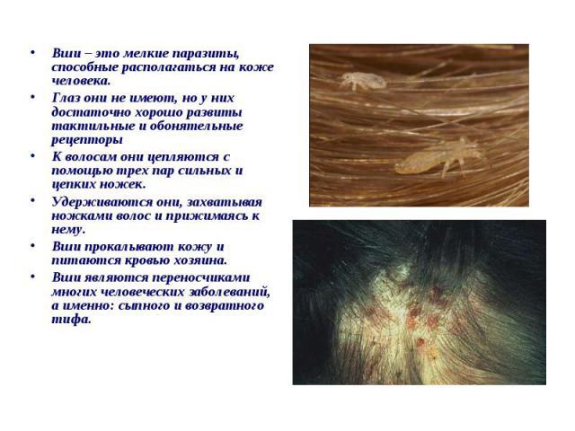 Вши – это мелкие паразиты, способные располагаться на коже человека. Вши – это мелкие паразиты, способные располагаться на коже человека. Глаз они не имеют, но у них достаточно хорошо развиты тактильные и обонятельные рецепторы К волосам они цепляют…