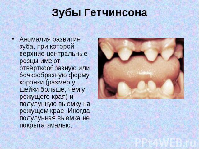 Аномалия развития зуба, при которой верхние центральные резцы имеют отвёрткообразную или бочкообразную форму коронки (размер у шейки больше, чем у режущего края) и полулунную выемку на режущем крае. Иногда полулунная выемка не покрыта эмалью. Аномал…