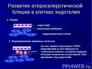 Развитие атеросклеротической бляшки в клетках эндотелия