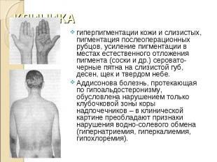 гиперпигментации кожи и слизистых, пигментация послеоперационных рубцов, усилени