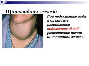 Щитовидная железа При недостатке йода в организме развивается эндемический зоб –