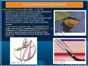 Коронарная ангиография (рис . 7,7а,7б) выполняется под местным обезболиванием, я