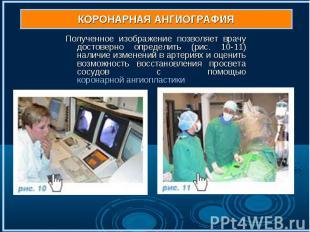Полученное изображение позволяет врачу достоверно определить (рис. 10-11) наличи