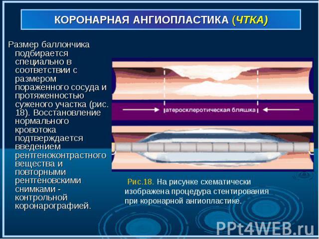 Размер баллончика подбирается специально в соответствии с размером пораженного сосуда и протяженностью суженого участка (рис. 18). Восстановление нормального кровотока подтверждается введением рентгеноконтрастного вещества и повторными рентгеновским…