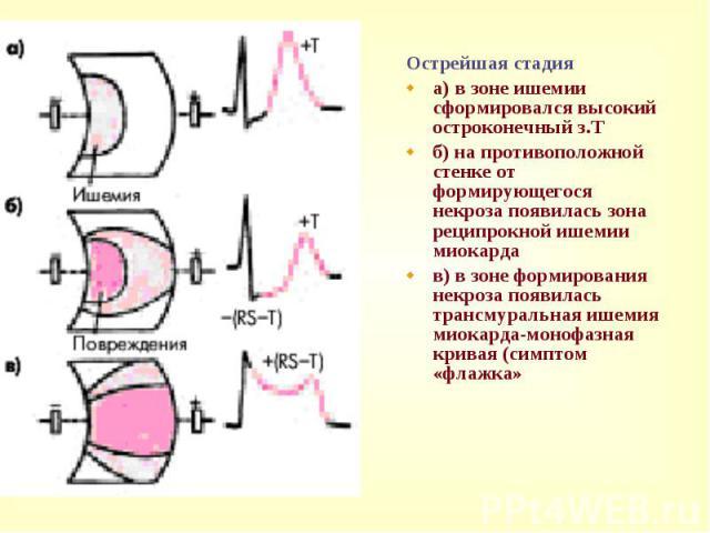Острейшая стадия Острейшая стадия a) в зоне ишемии сформировался высокий остроконечный з.Т б) на противоположной стенке от формирующегося некроза появилась зона реципрокной ишемии миокарда в) в зоне формирования некроза появилась трансмуральная ишем…