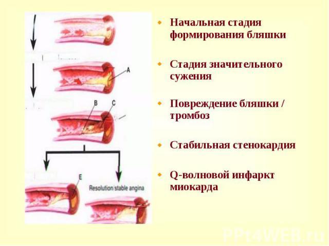 Начальная стадия формирования бляшки Начальная стадия формирования бляшки Стадия значительного сужения Повреждение бляшки / тромбоз Стабильная стенокардия Q-волновой инфаркт миокарда