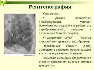 Рентгенография Характерно: участки ателектаза, пневмосклероза, усилеия брохолего