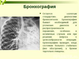 Бронхография Остается «золотым стандартом» диагностики бронхоэктазов. Бронхограф