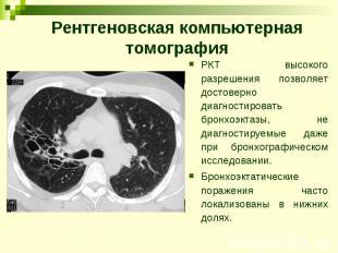 Рентгеновская компьютерная томография РКТ высокого разрешения позволяет достовер