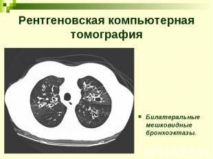 Рентгеновская компьютерная томография Билатеральные мешковидные бронхоэктазы.