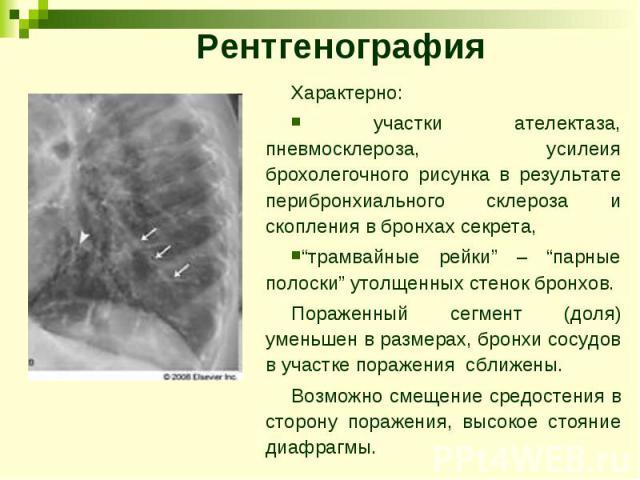 """Рентгенография Характерно: участки ателектаза, пневмосклероза, усилеия брохолегочного рисунка в результате перибронхиального склероза и скопления в бронхах секрета, """"трамвайные рейки"""" – """"парные полоски"""" утолщенных стенок бронхов. Пораженный сегмент …"""