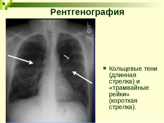 Рентгенография Кольцевые тени (длинная стрелка) и «трамвайные рейки» (короткая стрелка).