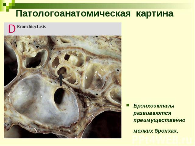 Патологоанатомическая картина Бронхоэктазы развиваются преимущественно мелких бронхах.