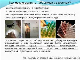 - исследование мокроты на микобактерии; - исследование мокроты на микобактерии;