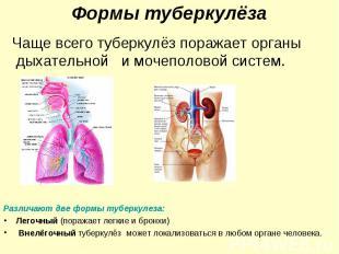 Чаще всего туберкулёз поражает органы дыхательной и мочеполовой систем. Чаще все