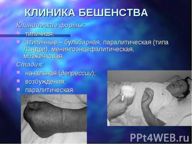 КЛИНИКА БЕШЕНСТВА Клинические формы: типичная; атипичные – бульбарная, паралитическая (типа Ландри), менингоэнцефалитическая, мозжечковая. Стадия: начальная (депрессии); возбуждения; паралитическая.