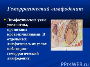 Лимфатические узлы увеличены, пронизаны кровоизлияниями. В отдельных лимфатическ