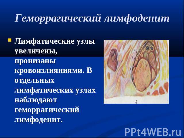 Лимфатические узлы увеличены, пронизаны кровоизлияниями. В отдельных лимфатических узлах наблюдают геморрагический лимфоденит. Лимфатические узлы увеличены, пронизаны кровоизлияниями. В отдельных лимфатических узлах наблюдают геморрагический лимфоденит.