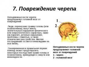 Неподвижные кости черепа предохраняют головной мозг от повреждений Неподвижные к