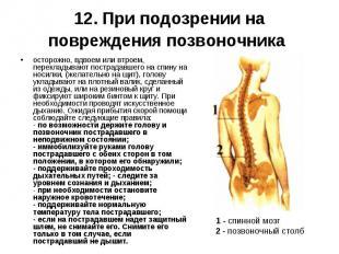осторожно, вдвоем или втроем, перекладывают пострадавшего на спину на носилки, (