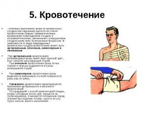 - излияние (вытекание) крови из кровеносных сосудов при нарушении целости их сте