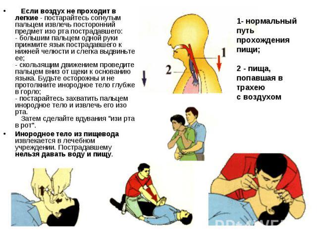Если воздух не проходит в легкие - постарайтесь согнутым пальцем извлечь посторонний предмет изо рта пострадавшего: - большим пальцем одной руки прижмите язык пострадавшего к нижней челюсти и слегка выдвиньте ее; - скользящим движением …