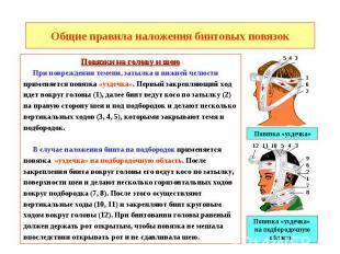 Общие правила наложения бинтовых повязок Повязки на голову и шею При повреждении