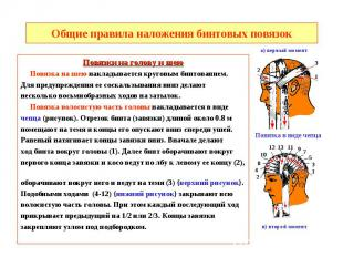Общие правила наложения бинтовых повязок Повязки на голову и шею Повязка на шею