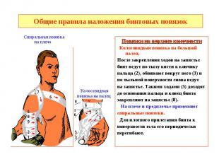 Общие правила наложения бинтовых повязок Повязки на верхние конечности Колосовид