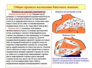 Общие правила наложения бинтовых повязок Повязки на верхние конечности Повязка н