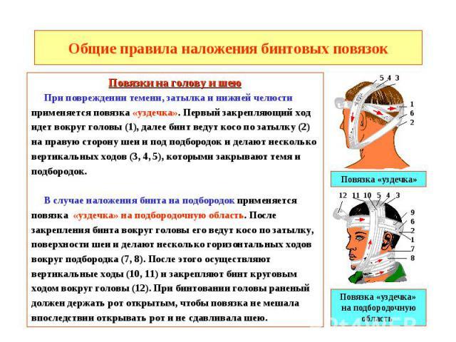 Общие правила наложения бинтовых повязок Повязки на голову и шею При повреждении темени, затылка и нижней челюсти применяется повязка «уздечка». Первый закрепляющий ход идет вокруг головы (1), далее бинт ведут косо по затылку (2) на правую сторону ш…
