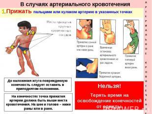 1. Прижать пальцами или кулаком артерию в указанных точках 1. Прижать пальцами и