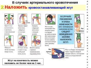 2. Наложить кровоостанавливающий жгут 2. Наложить кровоостанавливающий жгут