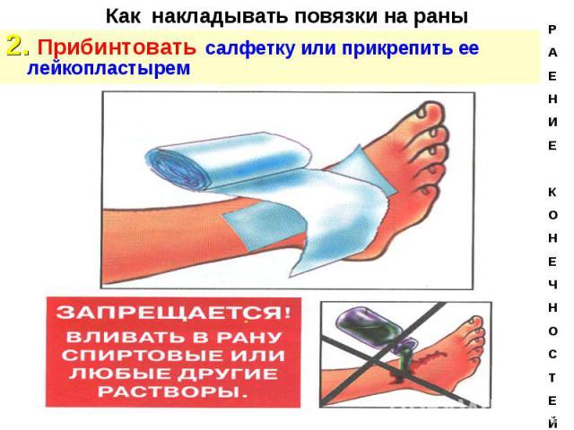 2. Прибинтовать салфетку или прикрепить ее лейкопластырем 2. Прибинтовать салфетку или прикрепить ее лейкопластырем