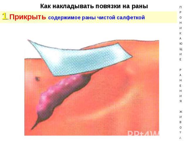 1. Прикрыть содержимое раны чистой салфеткой 1. Прикрыть содержимое раны чистой салфеткой