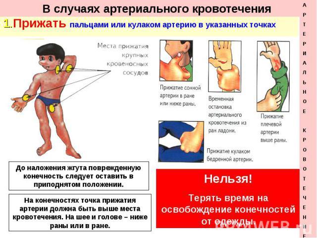1. Прижать пальцами или кулаком артерию в указанных точках 1. Прижать пальцами или кулаком артерию в указанных точках