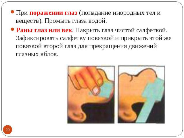 При поражении глаз (попадание инородных тел и веществ). Промыть глаза водой. При поражении глаз (попадание инородных тел и веществ). Промыть глаза водой. Раны глаз или век. Накрыть глаз чистой салфеткой. Зафиксировать салфетку повязкой и прикрыть эт…