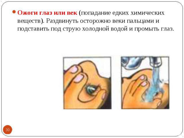 Ожоги глаз или век (попадание едких химических веществ). Раздвинуть осторожно веки пальцами и подставить под струю холодной водой и промыть глаз. Ожоги глаз или век (попадание едких химических веществ). Раздвинуть осторожно веки пальцами и подставит…