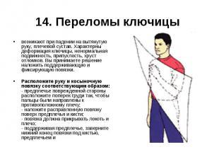 14. Переломы ключицы возникают при падении на вытянутую руку, плечевой сустав. Х