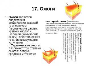 17. Ожоги Ожоги являются следствием воздействия высокой температуры (термические