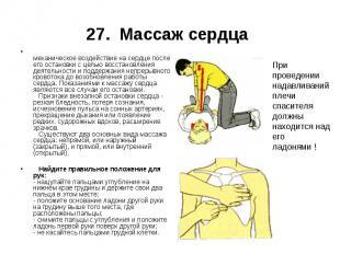 27. Массаж сердца механическое воздействие на сердце после его остановки с целью