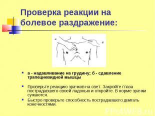 Проверка реакции на болевое раздражение: а - надавливание на грудину; б - сдавле