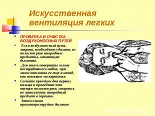 Искусственная вентиляция легких ПРОВЕРКА И ОЧИСТКА ВОЗДУХОНОСНЫХ ПУТЕЙ Если возд