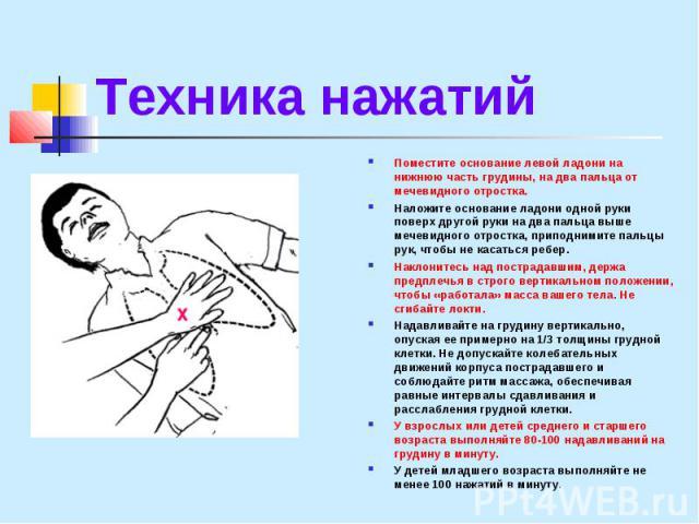 Техника нажатий Поместите основание левой ладони на нижнюю часть грудины, на два пальца от мечевидного отростка. Наложите основание ладони одной руки поверх другой руки на два пальца выше мечевидного отростка, приподнимите пальцы рук, чтобы не касат…